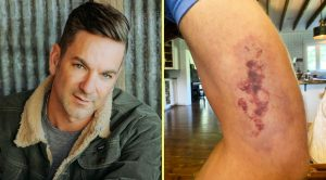 Craig Campbell Bitten By Brown Recluse – Seeking Medical Care