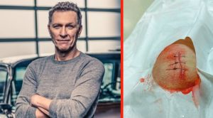 Craig Morgan Gets Stitches After Cutting Knee With Machete