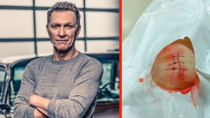 Craig Morgan Gets Stitches After Cutting Knee With Machete   Classic Country Music Videos
